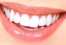 Photo of 6 Ways To Achieve a Healthy, Gorgeous Smile