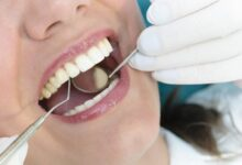 Photo of 3 Reasons Not To Skip Your Trip to the Dentist