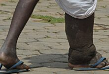 Photo of What is elephantiasis and its Causes?