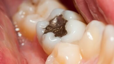 Photo of Different Types of Dental Fillings You Can Choose From