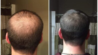 Photo of PRP Hair Restoration – A Guide on the Facts and Benefits